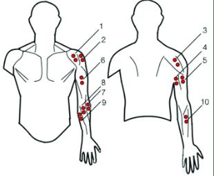 Posizionamento degli elettrodi per elettromiografia